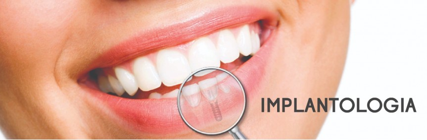 Implantology